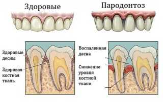 Пародонтоз – симптомы, стадии, причины