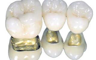 Металлический каркас для зубных коронок
