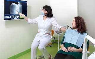 Реставрацию зуба во время беременности