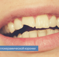 Скол керамики на зубном протезе восстановить