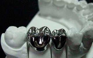 Какие зубные коронки правильные