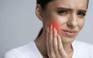 Пародонтит и воспаление тройничного нерва