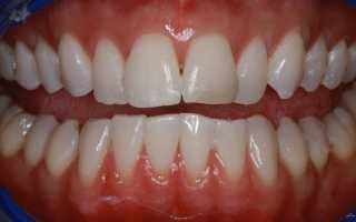 Пародонтиты при ортодонтическом лечении