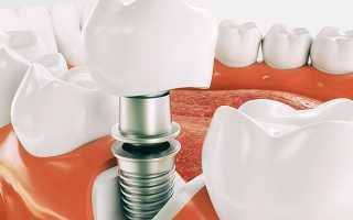Чем запаять зубную коронку