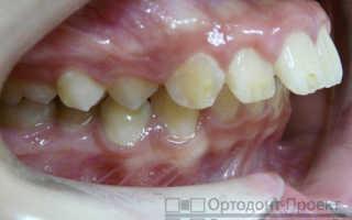 Реставрация выпирающего вперед зуба