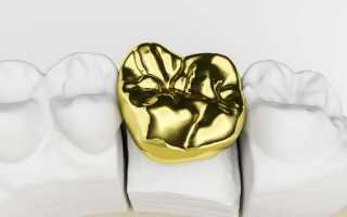 Может ли треснуть зубная коронка