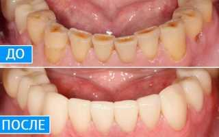 Установка коронки на зуб: показания к процедуре
