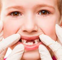 Пародонтит у ребенка чем лечить