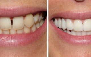 Cerec ac реставрация зубов