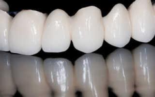 Какие зубные коронки лучше выбрать, протеза