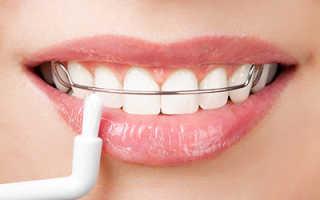 Пластинки для исправления прикуса ― оптимальный метод ортодонтии – полезная информация