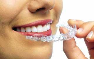 Выравнивание зубов без брекетов — Кривые зубы у мужчины старше 40 лет