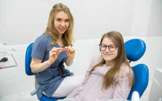 Какие брекеты лучше ставить взрослому для выравнивания зубов и прикуса
