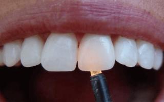 Зубные коронки с циркониевым покрытием