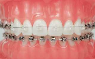 Как брекеты выравнивают зубы: принцип действия, плюсы и минусы использования брекет систем