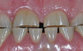 Реставрация при стирании зубов