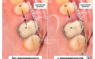 Сепарация зубов при ношении брекетов — последствия и отзывы!