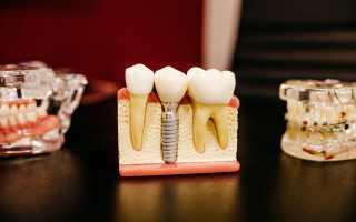 Как приживаются зубные коронки