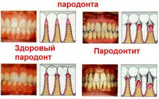 Гингивит пародонтит лечение для стоматологов