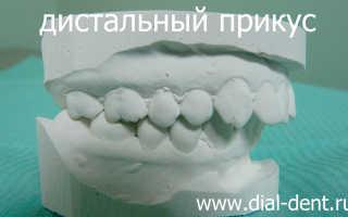 Исправление дистального прикуса зубов — лечение дистального прикуса на аппарате Гербста