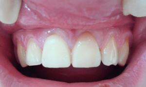 Что будет, если проглотить зуб со штифтом, коронку, зубной протез: что делать