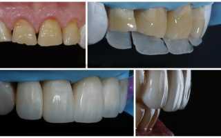 Установка коронок или реставрация зуба