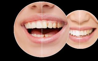 Реставрация зуба из оставшегося корня