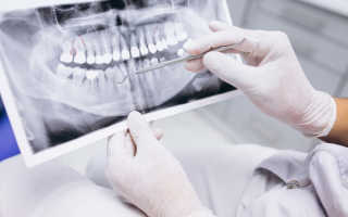 Болит зуб под коронкой — как помочь в домашних условиях
