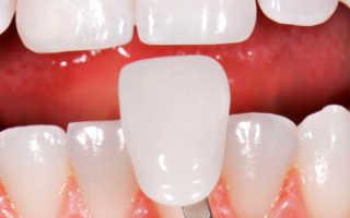 Косметическая реставрация зубов – методы восстановления передних и задних зубов, стоимость