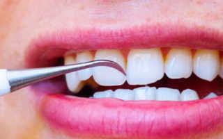Зубные коронки с камнем