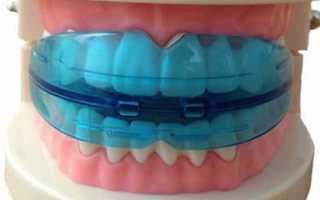Для выравнивания зубов трейнеры
