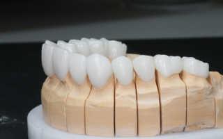 Зубные коронки и их преимущества