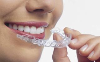 Выравнивание зубов в старшем возрасте