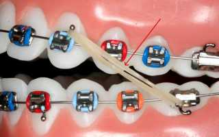 Зачем нужны резинки при ношении брекетов на зубах — для улучшения прикуса