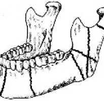 Перелом нижней челюсти — причины, симптомы, диагностика и лечение