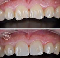Что нового в стоматологии реставрация зубов