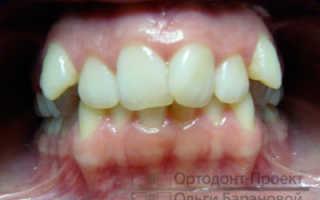 Пример реставрации переднего зуба