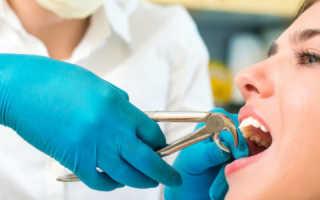 Реставрация зубов: все, что вам необходимо знать