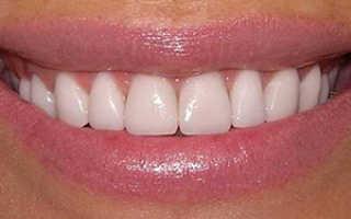 Полная реставрация зуба на штифте