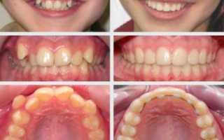 Выравнивание зубов в украине
