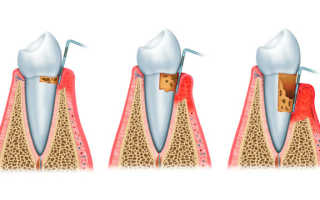Зубная формула при пародонтите