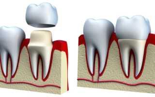 Зубная паста при металлических коронках