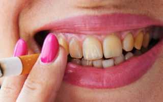 Как очистить зубные протезы от налёта в домашних условиях