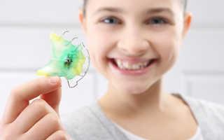 Пластинки для зубов – Как ставят пластинки для выравнивания зубов
