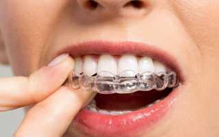 Капы для выравнивания зубов применение