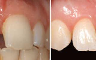 Кто вставляет зубы, как называется специалист?
