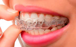 Капли для выравнивания зубов