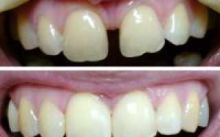 Реставрация зубов при диастеме до и после