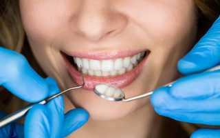 Зубные коронки за 1 день