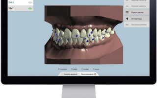 Выравнивание зуба за раз